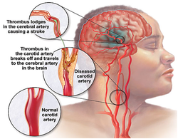 paralysis-stroke-250x250